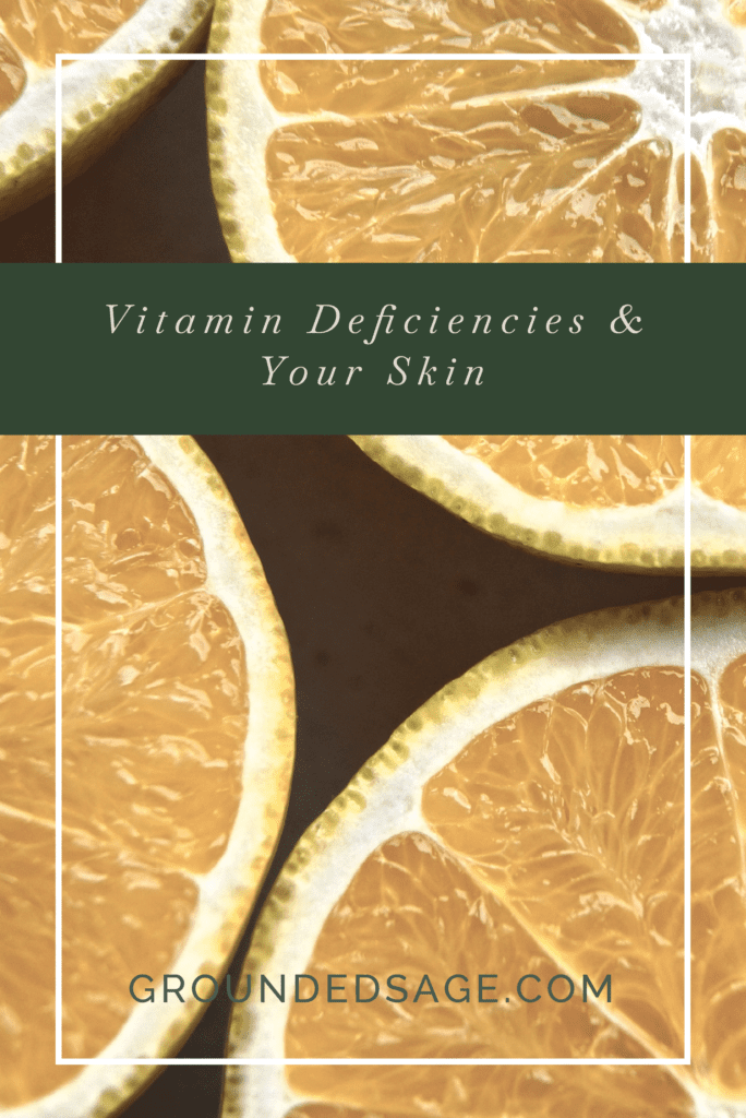 vitamin deficiency & your skin / skincare / holistic skincare / green beauty / vitamins for skin / skincare supplements
