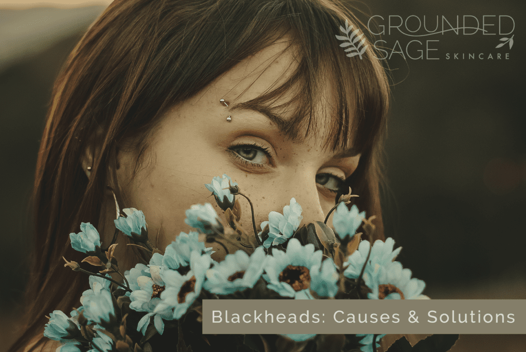 Blackheads: causes and solutions / congestion / exfoliation / green beauty