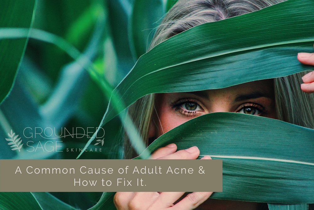 Common cause of adult acne and how to fix it / acne-prone skin / hormonal acne / green beauty / holistic beauty