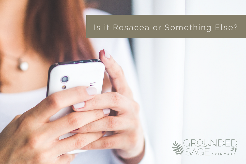 is it rosacea or something else / skin redness/ acne bumps / rosacea skincare / rosacea tips / sensitive skin / green beauty