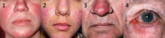 Rosacea types / rosacea subtypes / skincare concern / sensitive skin