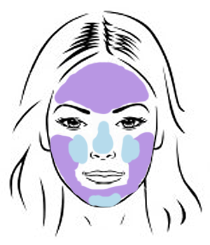 Areas commonly affected by adult acne. Purple - most common areas for breakouts (pimples, etc). Blue - most common areas for blackheads