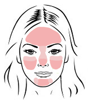 Where rosacea commonly shows up