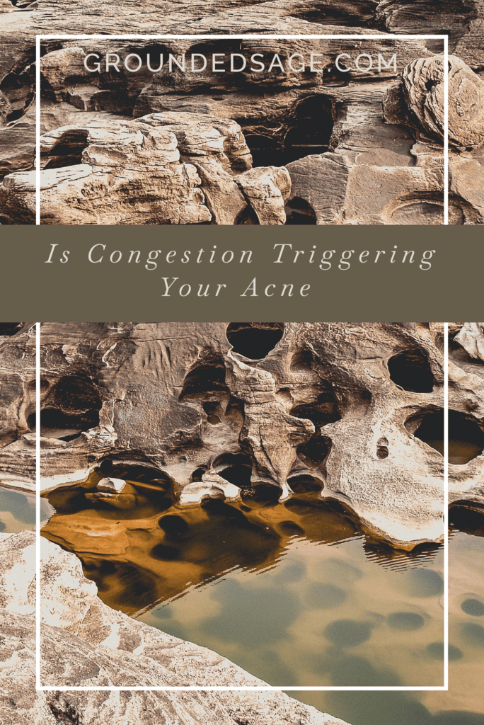 Is congestion triggering my acne / congested pores / clogged pores / acne treatment / acne care / congested skin / large pores