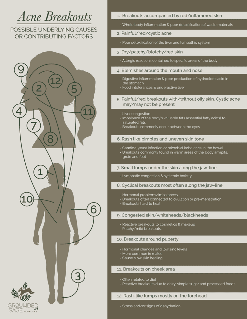 underlying causes of acne/ acne care/ acne skincare/ holistic beauty / green beauty/ internal healing for acne/ infographic