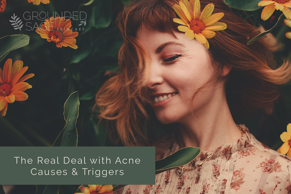 acne triggers and causes / internal healing for acne / holistic beauty / acne care / green beauty