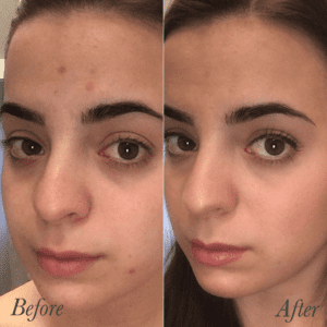 Mineral makeup foundation / green beauty / before and after