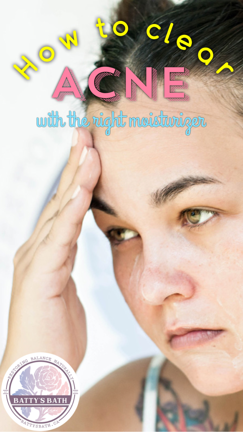 How To Clear Acne With The Right Moisturizer Battys Blog