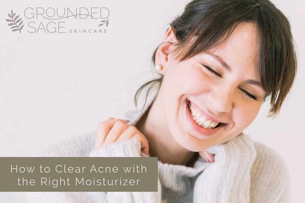 how to clear acne with the right moisturizer - acne care / acne solutions / facial moisturizer / oils for acne / green beauty