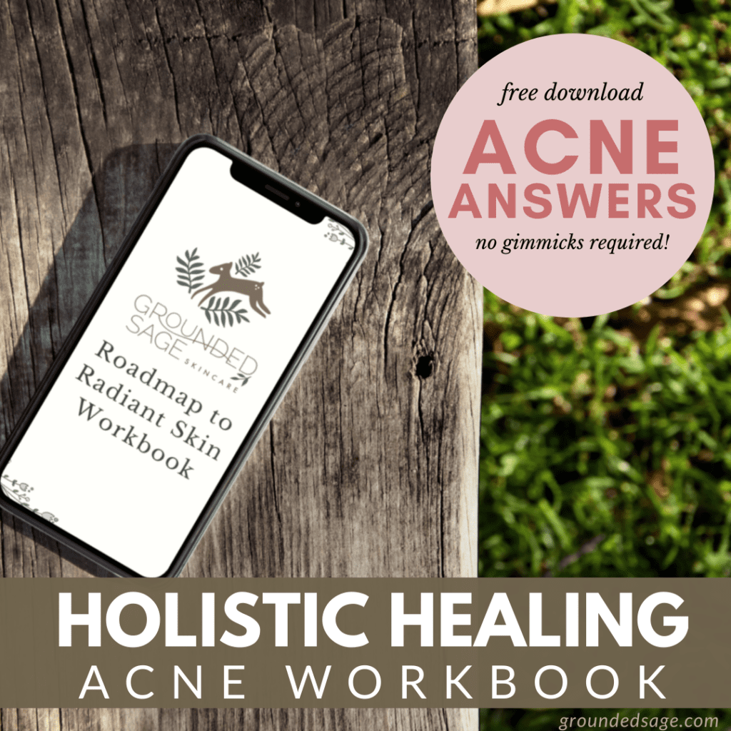 Holistic healing for acne planner and workbook - natural treatment remedies for getting rid of acne