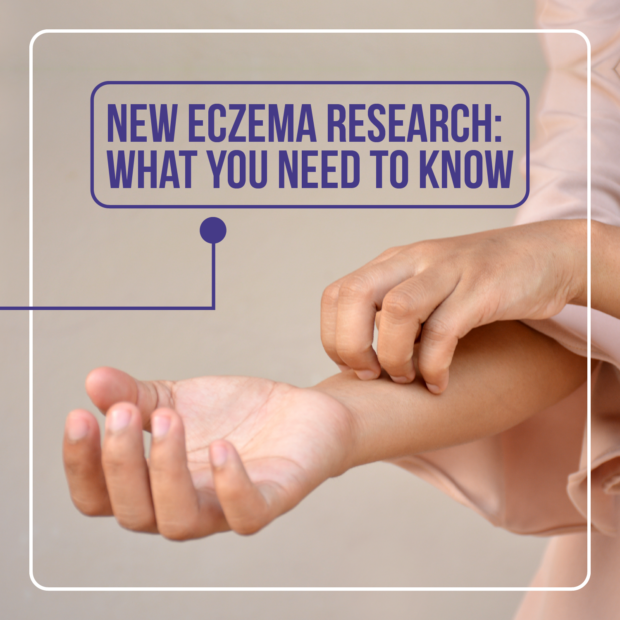 eczema research / what you need to know / how to tackle itchy. flaky skin