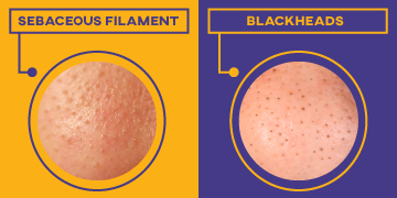 sebaceous filaments versus blackheads