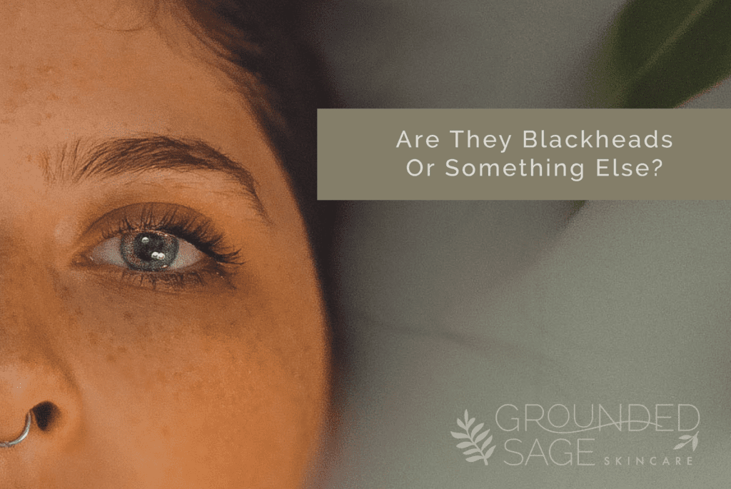Are they blackheads or something else? - Grounded Sage