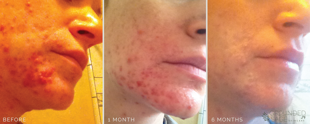 Amy's acne journey // before and after photos with Grounded Sage Skincare