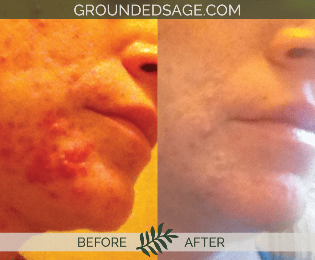amy's before and after story / acne journey / green beauty skincare / eco skincare