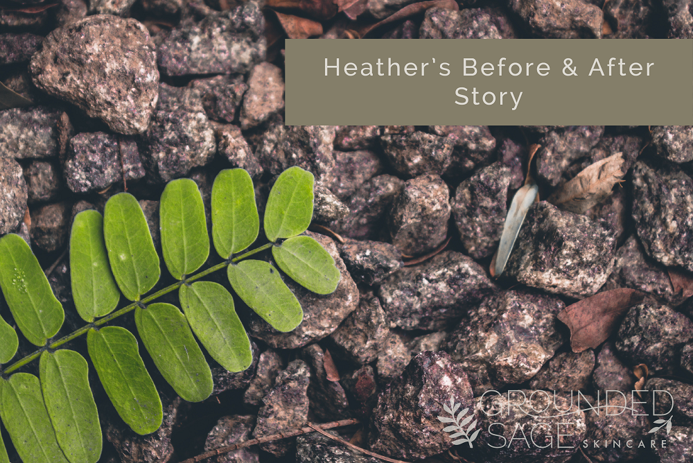 Heather's before and after story // body acne // green beauty