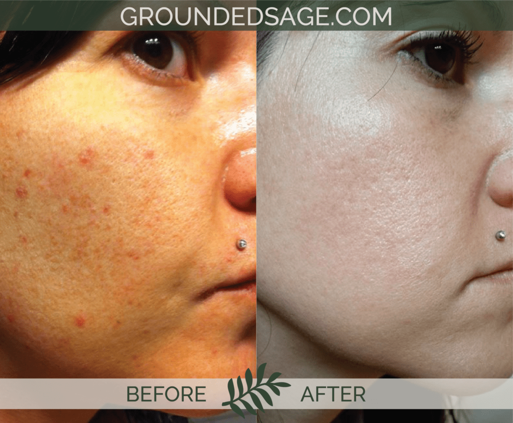 Jamie's before & after story / acne / green beauty / skincare / eco beauty