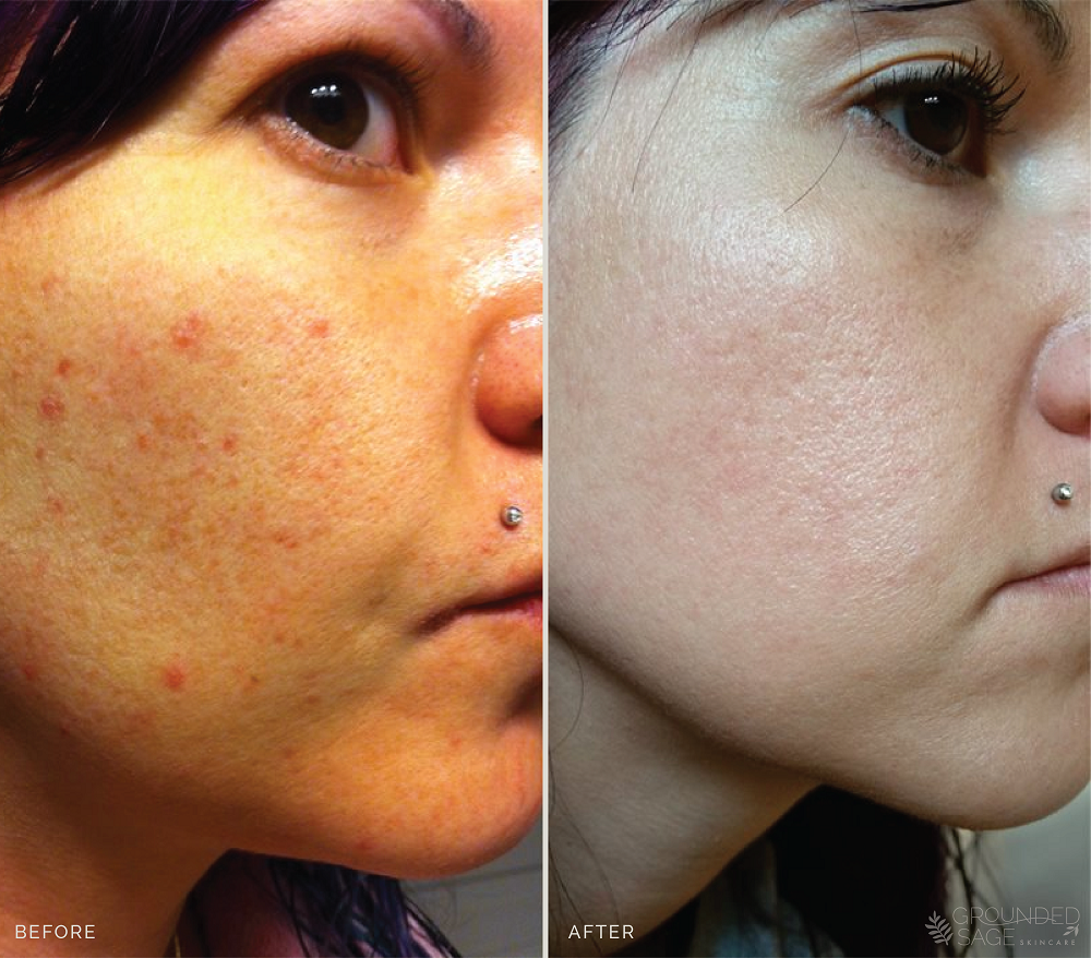 Jamie's before and after photos // skincare // green beauty