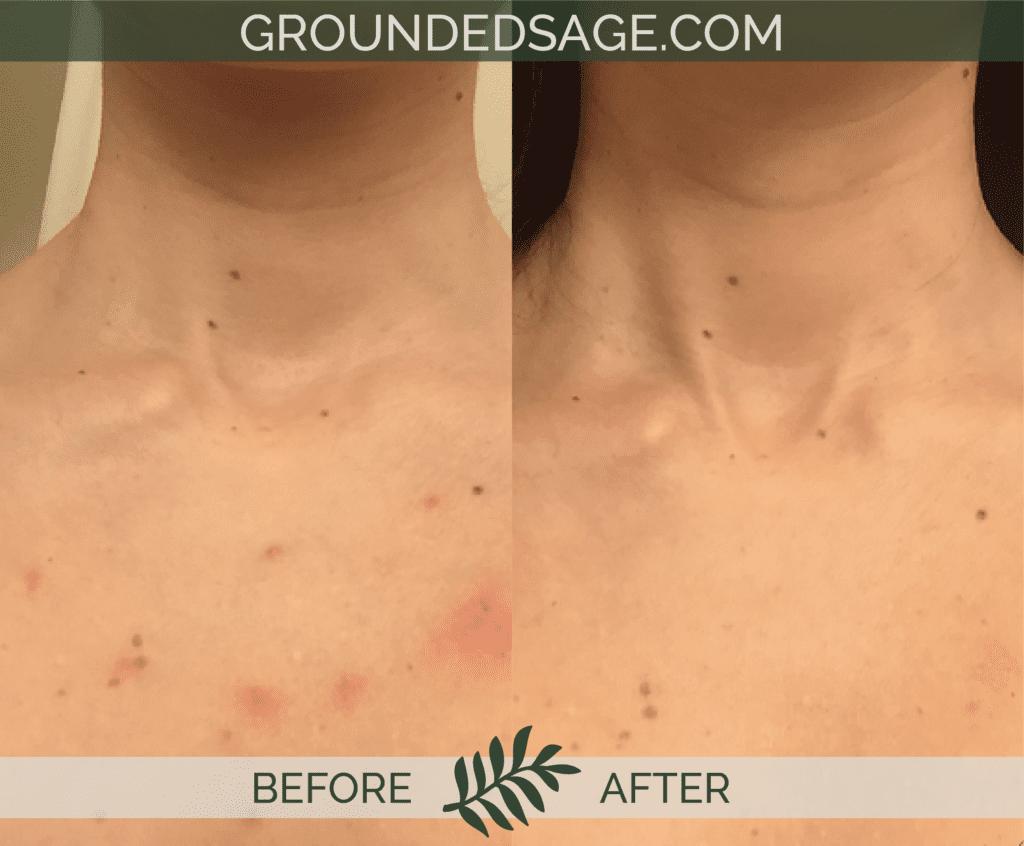 Jana's before & after story / acne / green beauty / skincare / eco beauty