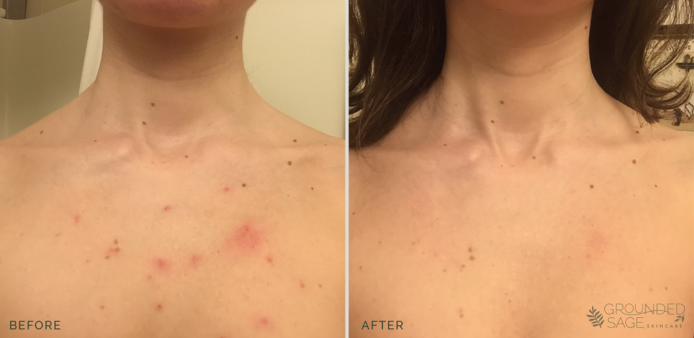 Jana's before and after photos // acne healing with grounded sage skincare