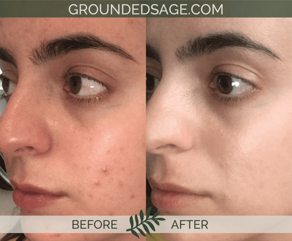 Jaye's before & after story / acne / green beauty / skincare / eco beauty