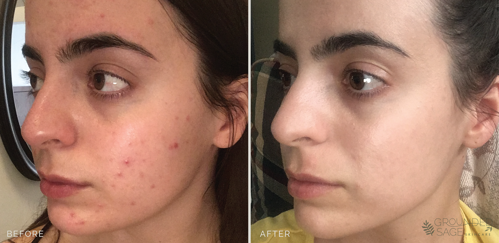 jaye's before and after photos / acne journey