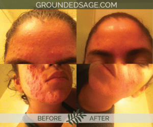 Jocelyn's before & after story / acne / green beauty / skincare / eco beauty