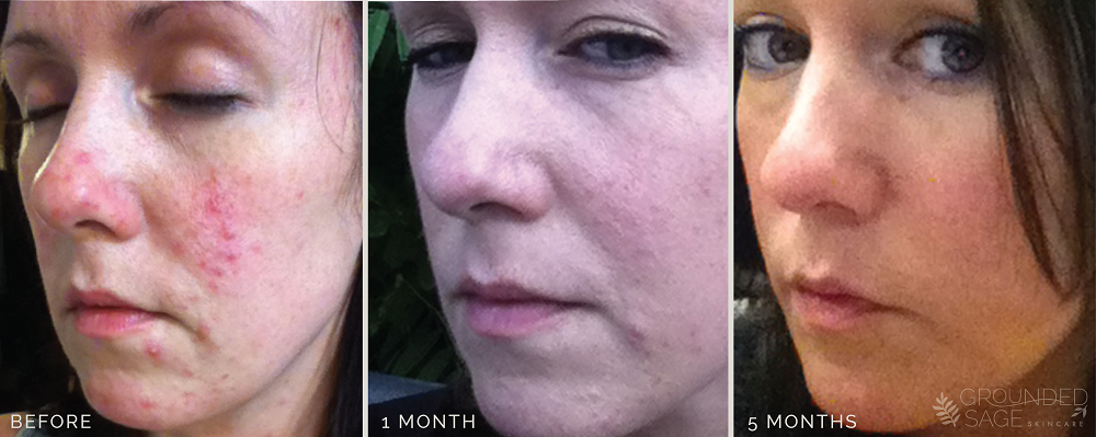Kat's before and after photos // acne healing with Grounded Sage Skincare