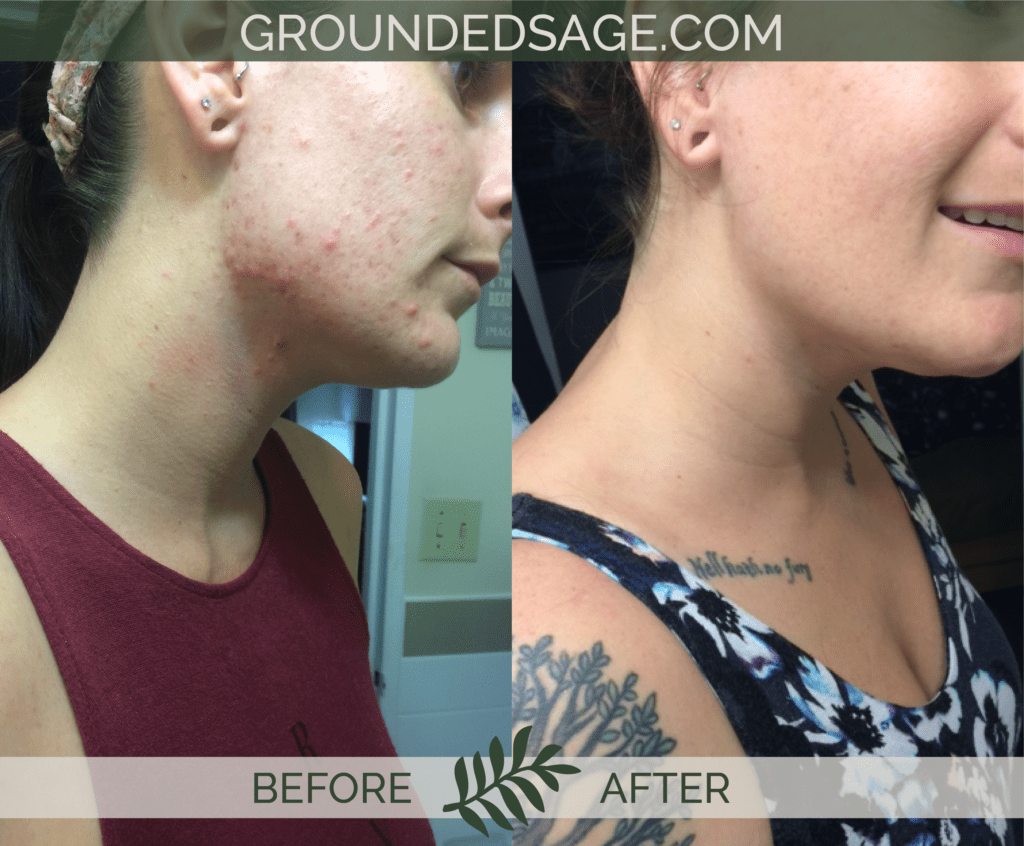 Kathleen's before & after story / acne / green beauty / skincare / eco beauty