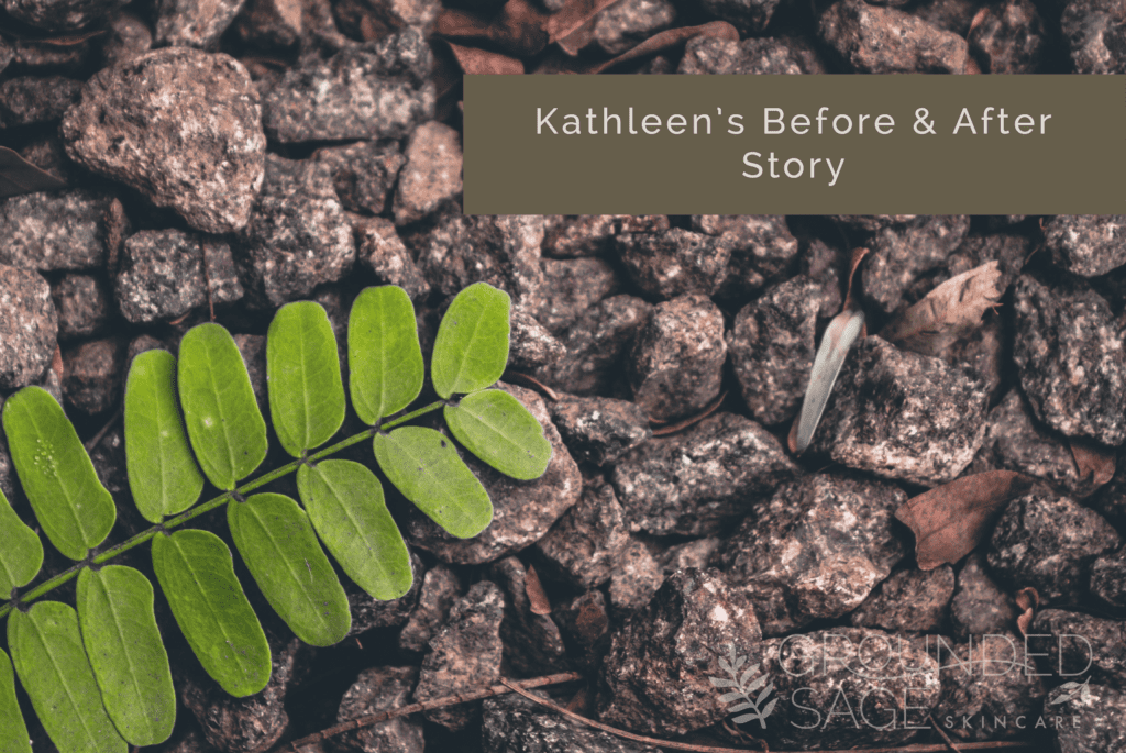 Kathleen's before and after story // acne journey with Grounded Sage Skincare