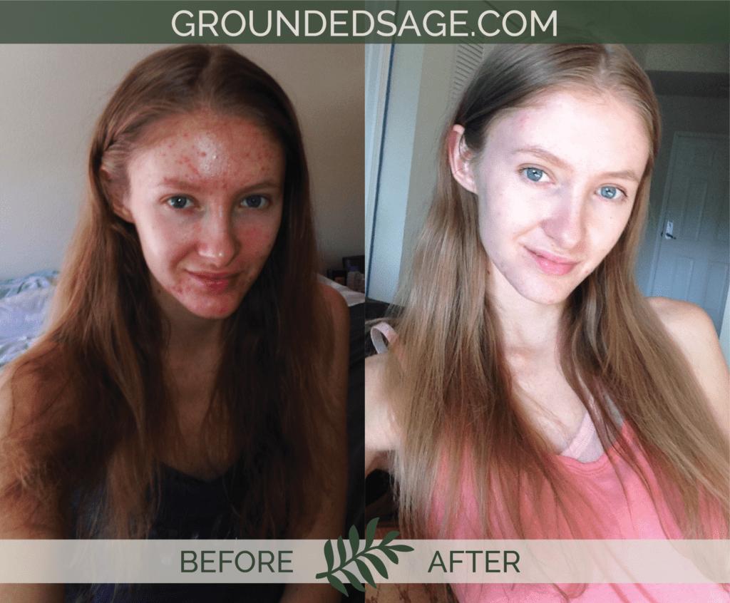 Katrina's before & after story / acne / green beauty / skincare / eco beauty