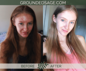 Katrina's before & after story / acne / green beauty / skincare / eco beauty