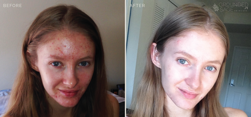 Katrina's before and after photos // acne healing // grounded sage skincare