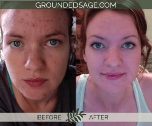Khyber's before & after story / acne / green beauty / skincare / eco beauty