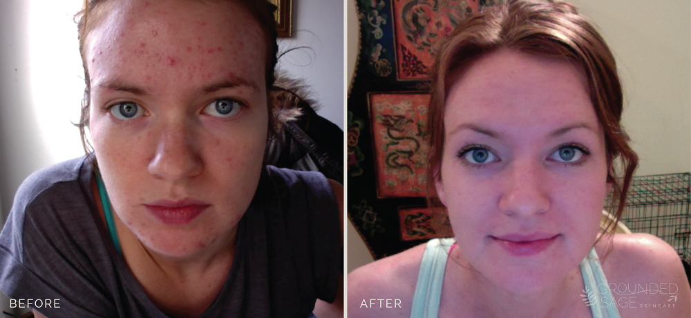 Khyber's before and after photos // acne healing with Grounded Sage Skincare