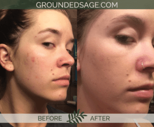 Leanna's before & after story / acne / green beauty / skincare / eco beauty