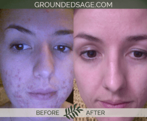 Melissa's before & after story / acne / green beauty / skincare / eco beauty