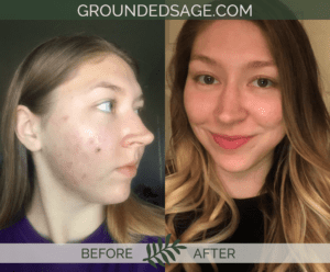 Shyenne's before and after story with Grounded Sage Skincare / acne / green beauty / skincare for acne
