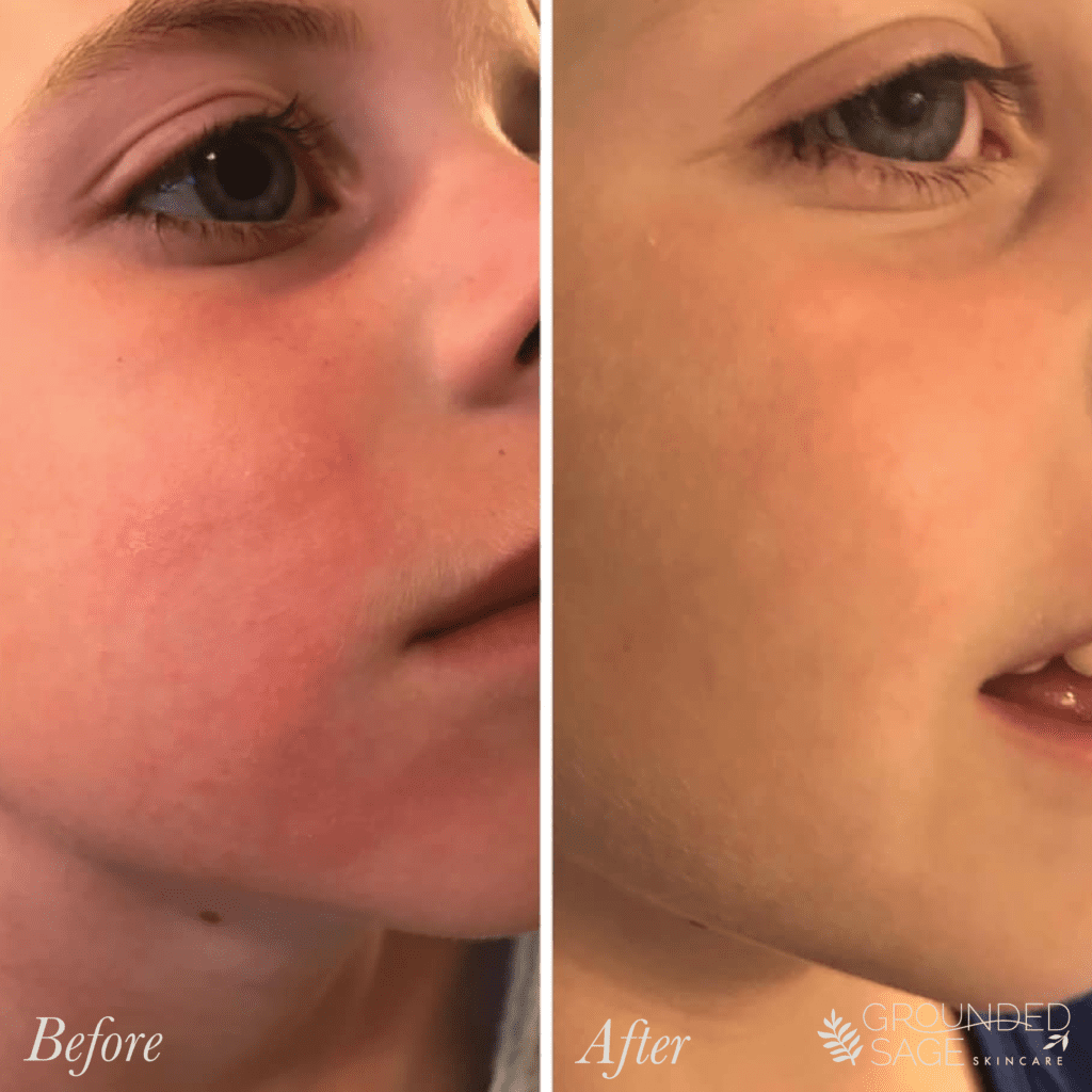 a young boy's before and after story // skincare journey // green beauty