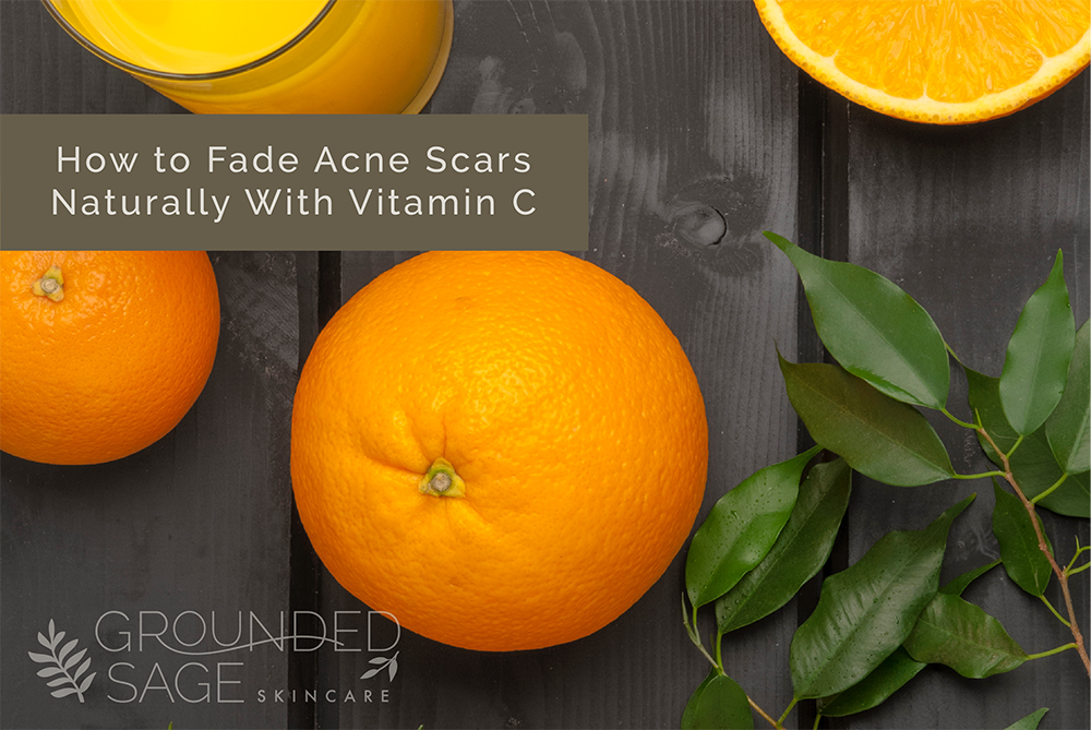 Acne Scarring - how to get rid of acne scars with skincare products