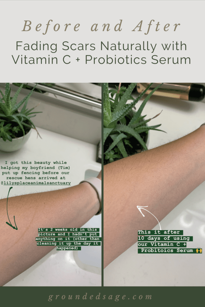 fade acne scars naturally with vitamin c serum with probiotics