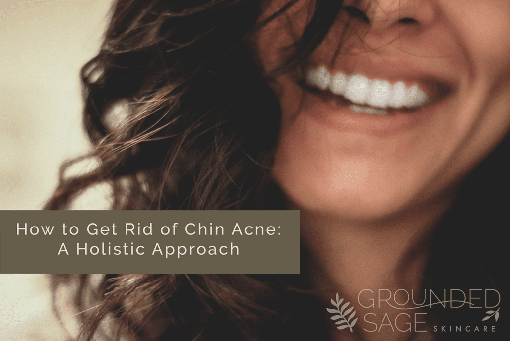How to get rid of chin acne - causes, remedies and treatment for hormonal acne including products for a simple skincare routine