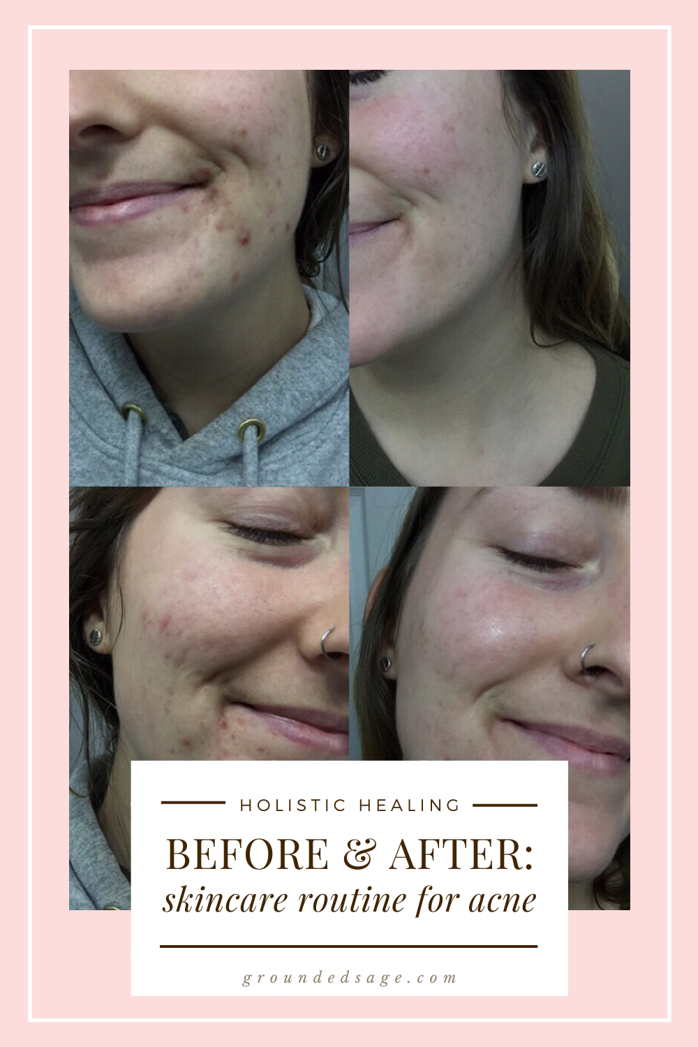 Skin Before and After Acne Skincare Routine with Vitamin C Serum