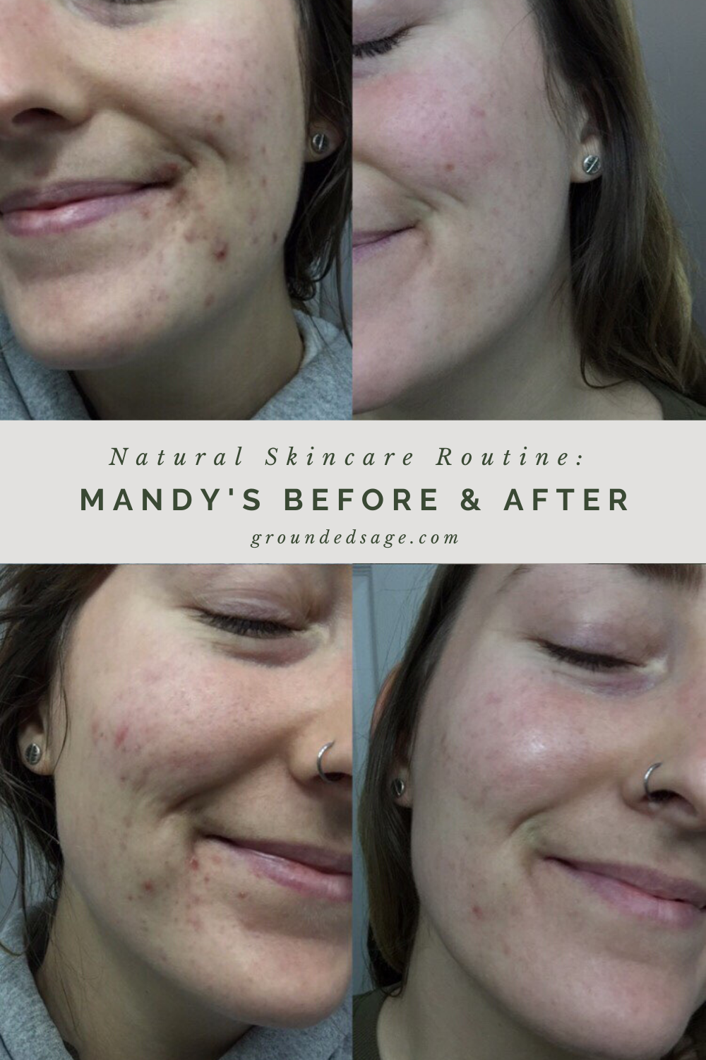 holistic healing natural skincare routine for acne before and after