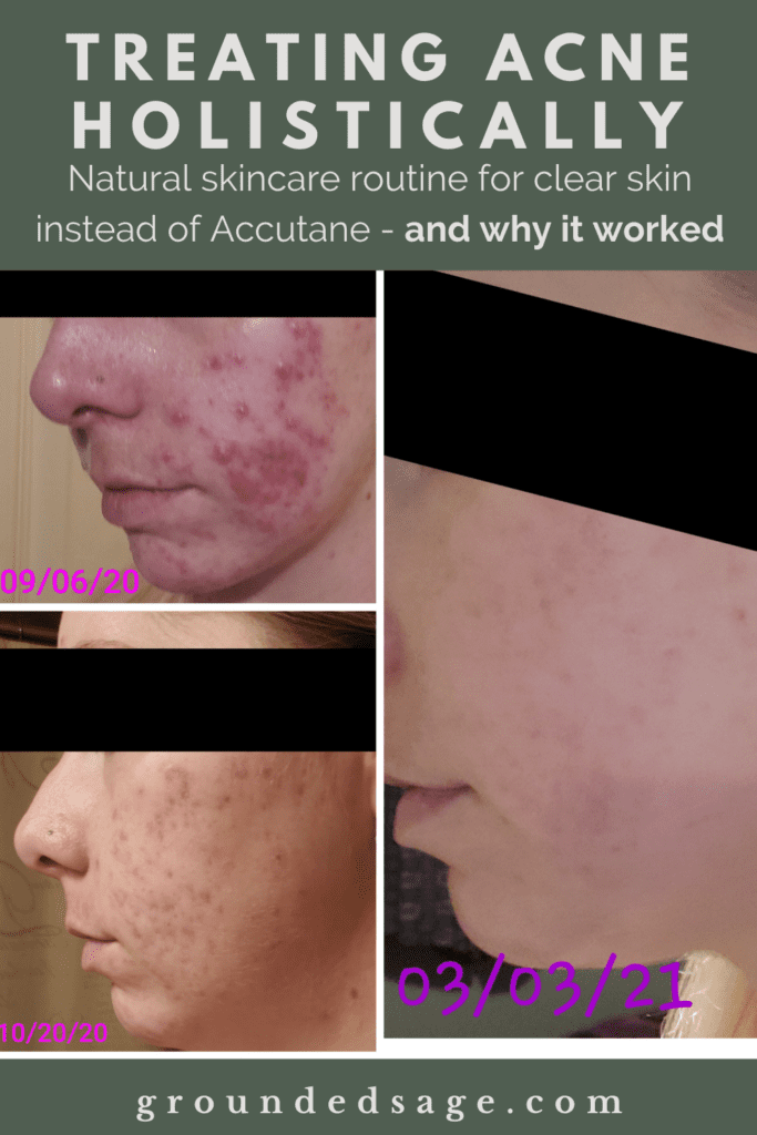 How I Cleared My Acne Blog - Treating Acne Holistically Instead of Accutane - My Acne Journey Blog and the complete step by step routine in my skin care routine for stubborn acne