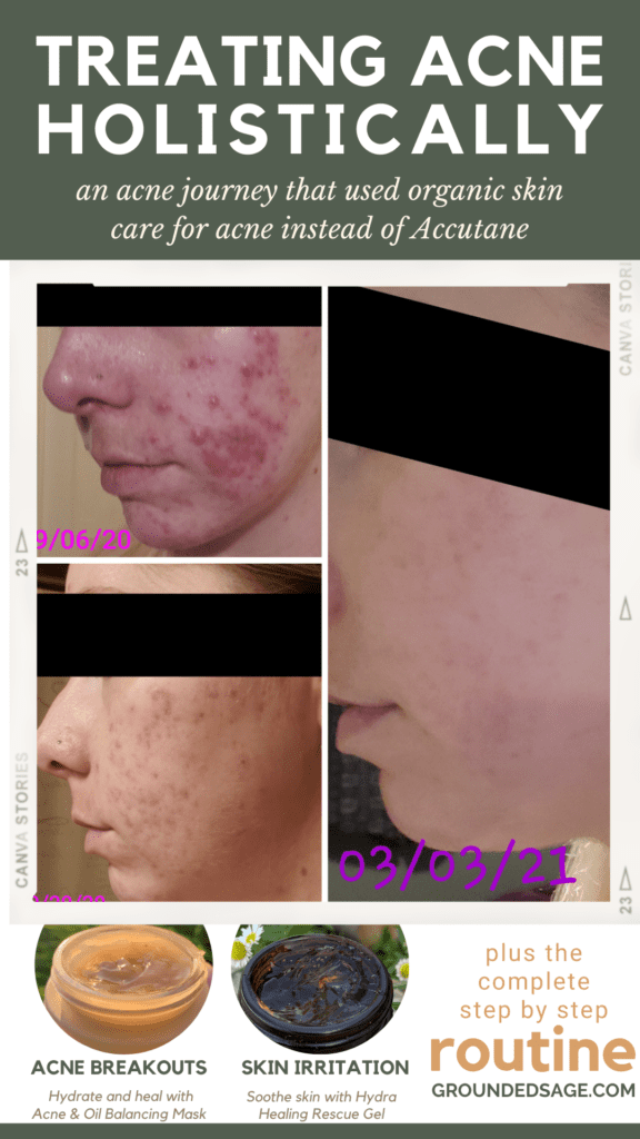 Acne Treatment Canada - treating acne holistically - what worked to clear up my acne without accutane
