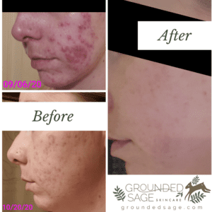 Treating Acne Holistically Instead of Accutane - My Acne Journey Blog and the complete step by step routine in my skin care routine for stubborn acne